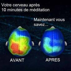 Comparaison de deux cerveaux avec l'image en couleur de la différence d'un cerveau qui médite et l'autre non.